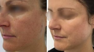 До и после лазерного омоложения 1