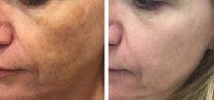 До и после лазерного омоложения 2