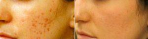 До и после лазерного омоложения 3