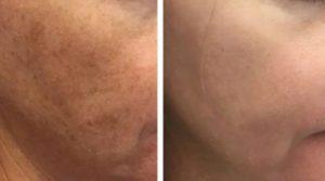 До и после лазерного омоложения 4